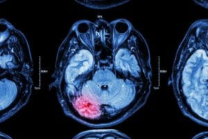 What are the Most Common Traumatic Brain Injuries (TBI) in Teens?